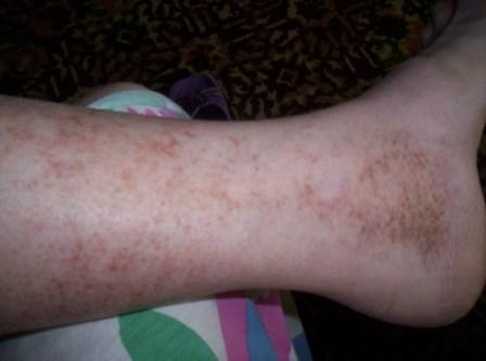 Почему возникает варикозное расширение вен на ногах