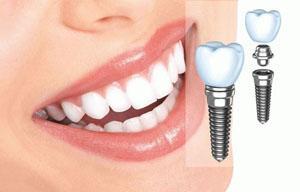 Название: implant (1).jpg Просмотров: 844  Размер: 16.0 Кб