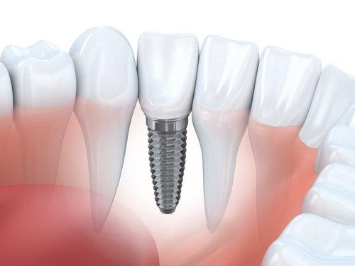Название: implantaciya.jpg Просмотров: 21  Размер: 24.4 Кб