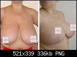 Нажмите на изображение для увеличения Название: e1cdff7ee2c8451cbe75611136bcaea0.png Просмотров: 68 Размер: 336.4 Кб ID: 14167