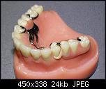 Нажмите на изображение для увеличения Название: protez_03.jpg Просмотров: 286 Размер: 24.1 Кб ID: 7583