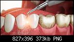 Нажмите на изображение для увеличения Название: отложения зубные.png Просмотров: 12 Размер: 373.2 Кб ID: 17413