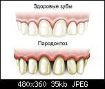Нажмите на изображение для увеличения Название: parodontoz.jpg Просмотров: 7 Размер: 34.6 Кб ID: 17392