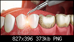 Нажмите на изображение для увеличения Название: отложения зубные.png Просмотров: 6 Размер: 373.2 Кб ID: 17413