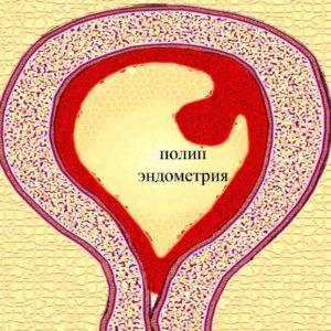 Название: полип+эндометрия+-+диагностика.jpg Просмотров: 296  Размер: 32.5 Кб