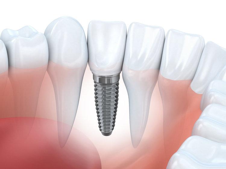 Название: implantaciya.jpg Просмотров: 401  Размер: 42.3 Кб