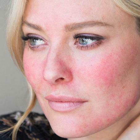 Нажмите на изображение для увеличения Название: acne-kinds-rosacea-e1535490249913.jpg Просмотров: 751 Размер: 35.7 Кб ID: 17141