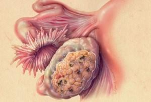 Название: Рак+яичников.jpg Просмотров: 300  Размер: 20.1 Кб