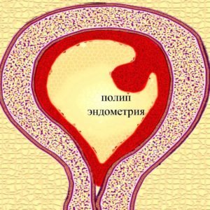 Название: полип+эндометрия+-+диагностика.jpg Просмотров: 262  Размер: 32.5 Кб