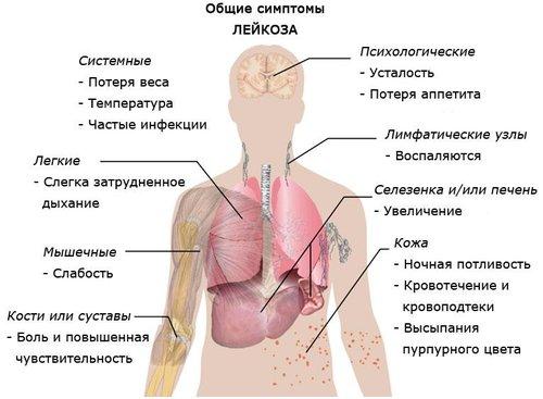 Название: Первичная+диагностика+острых+лейкозов.jpg Просмотров: 608  Размер: 37.4 Кб